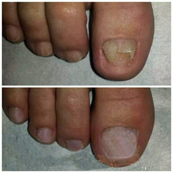 behandla nagelsvamp hemma